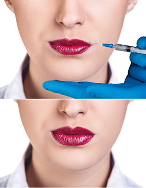 Best Dermatologist in Montebello for Voluma - Woman gets injection in her lips