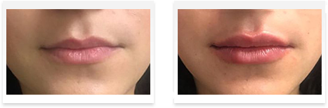 Dermal Fillers Downey - Before and after 09