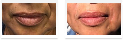 Dermal Fillers Downey - Before and after 10