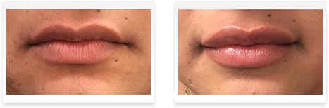 Dermal Fillers Downey - Before and after 11