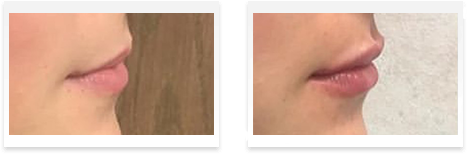 Dermal Fillers Downey - Before and after 12