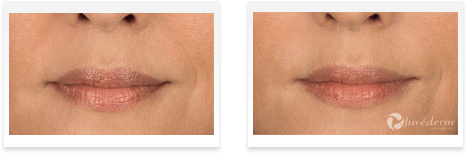 Dermal Fillers Downey - Before and after 01