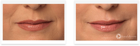 Dermal Fillers Downey - Before and after 02