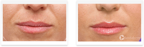Dermal Fillers Downey - Before and after 03