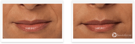 Dermal Fillers Downey - Before and after 04