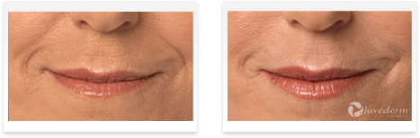 Dermal Fillers Downey - Before and after 05
