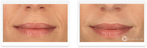 Dermal Fillers Downey - Before and after 06