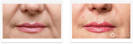 Dermal Fillers Downey - Before and after 07