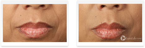 Dermal Fillers Downey - Before and after 08