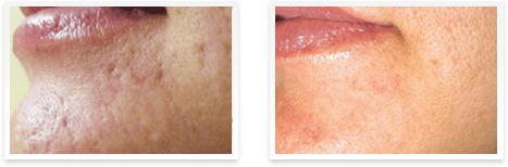 Eclipse MicroPen Elite Downey CA - Before and after micropen 11