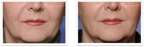 Restylane Downey - Before and after Restylane Downey 02
