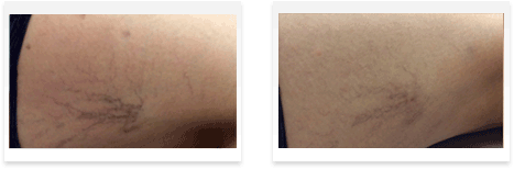 Sclerotherapy Before and after 01