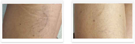 Sclerotherapy Before and after 02